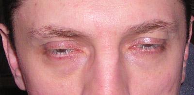 Ochrana pred červenými očami: vypnúť!