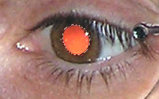 Odstránenie červených očí