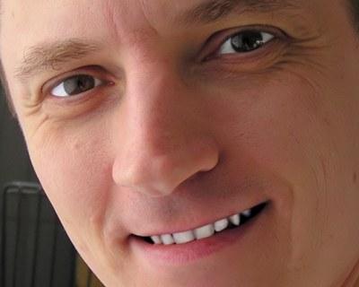 Žlté oči a zuby